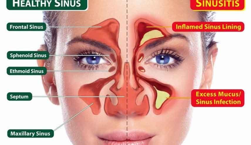 علاج التهاب الجيوب الأنفية المزمن في تايلند