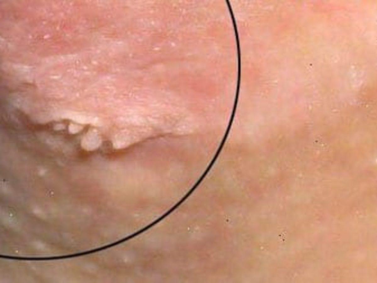 فيروس الورم الحليمي البشري الثآليل التناسلية عند الرجال بالصور