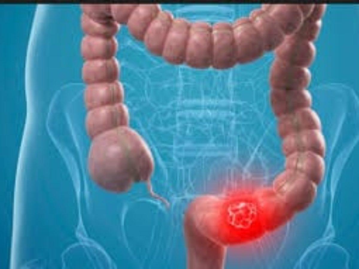علاج سرطان القولون في تايلند