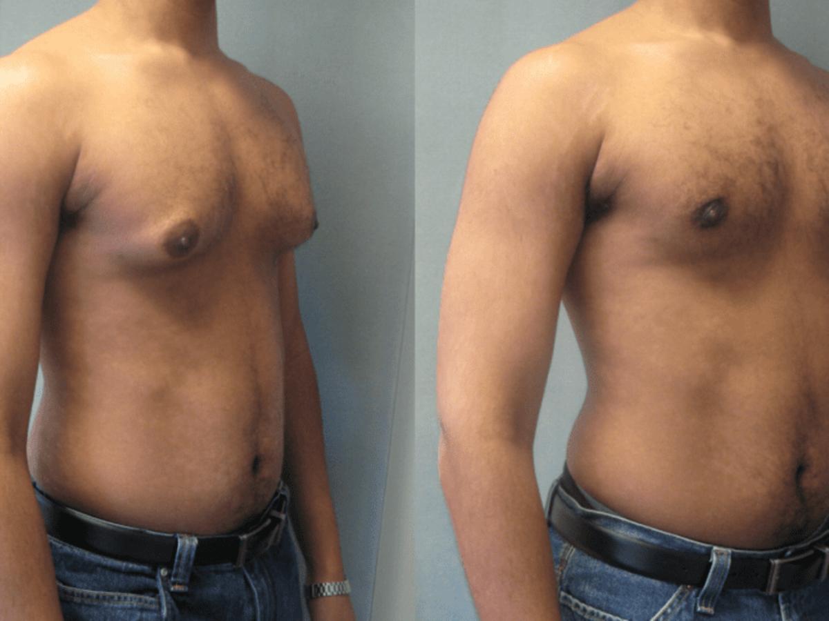 أفضل الطرق للتخلص من التثدي عند الرجال