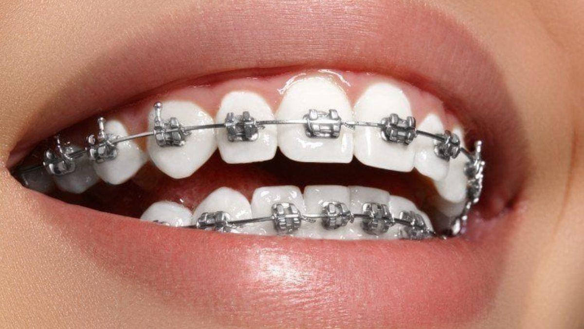 تقويم الأسنان في تايلند