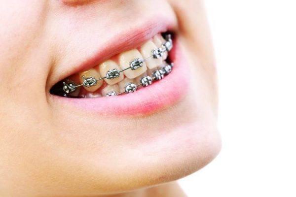 عروض عمليات تركيب تقويم الأسنان لدينا في تايلند لفترة محدودة